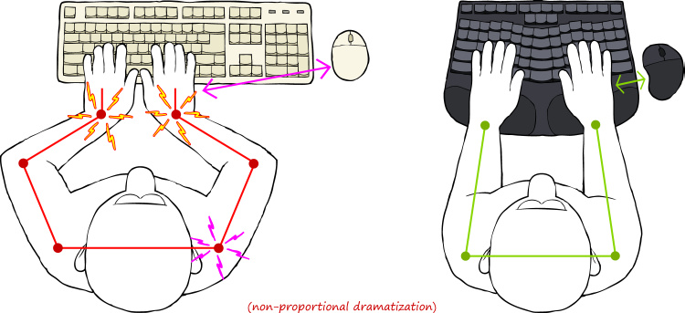 Conventional vs Ergonomic